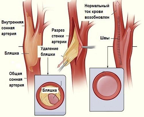 каротидная эндартерэктомия осложнения